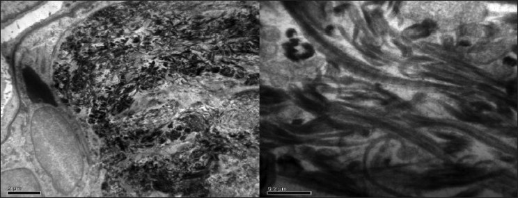 Figure 7: Electron microscopic study of renal biopsy specimen fixed using gluteraldehyde, viewed under 40,000x magnification revealed abundant subendothelial deposits of large fibers (97nm in width) with long spacing striations suggestive of collagen fibers; confirming the diagnosis of collagenous glomerulopathy