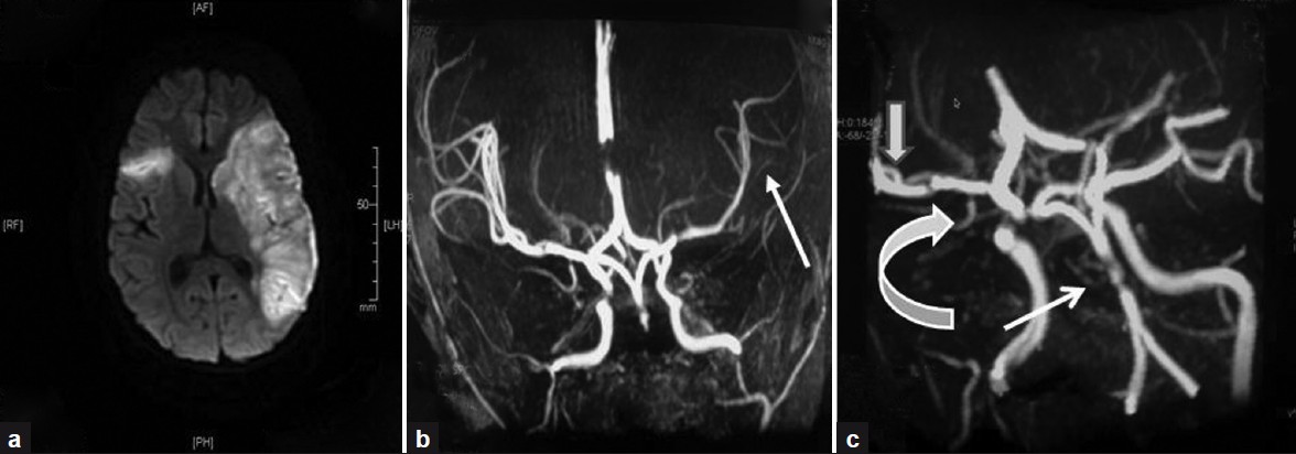 Figure 1: (a) Magnetic resonance imaging (T1W) showing acute infarct in the left frontal, temporal, and parietal region, right centrum semiovale, and periventricular region. (b) Magnetic resonance angiography with coronal MIP projection of circle of Willis showing paucity of distal branches (arrows) of the left Middle Cerebral Artery (MCA) compared to the right side. (c) Magnetic resonance angiography (3D MIP reconstruction TOF) showing filling defects in basilar artery (thin arrow), focal narrowing of the right internal carotid artery (curved arrow), and M-2 segment of the right MCA (thick arrow)