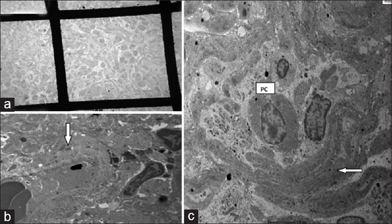 Figure 2: (a) Extensive interstitial fibrous deposition encircling nests of lymphoplasmacytic cells, demonstrating bird's eye pattern of fibrosis (transmission electron microscopy, ×610). (b) Bird's eye fibrosis in immunoglobulin - G4 tubulointerstitial nephritis - fibrous bundles (white arrow) encircling nests of swollen inflammatory cells (transmission electron microscopy, ×2550) (plasma cell). (c) Scattered electron-dense deposits (white arrow) in thickened tubular basement membrane remnants (transmission electron microscopy, ×6000)