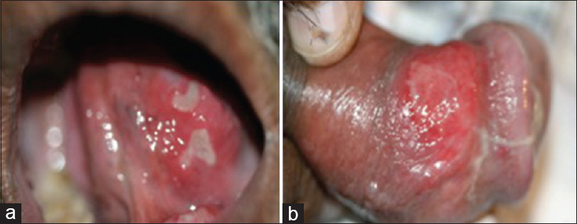 Aphthous ulcers on penis