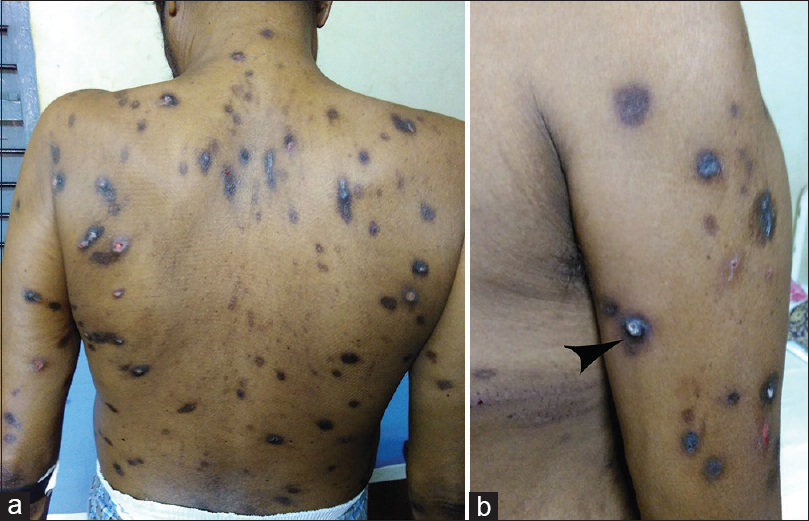 Figure 1: Multiple hyperpigmented papules over the back (panel a) and arm with central keratotic plug (panel b)