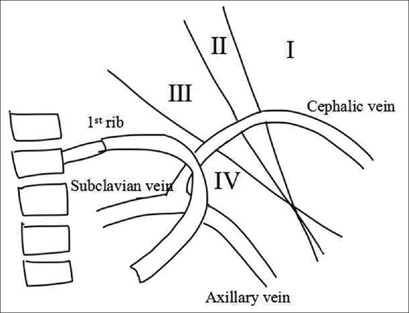 Cephalic Arch Stenosis Location Of Stenosis In Indian Hemodialysis