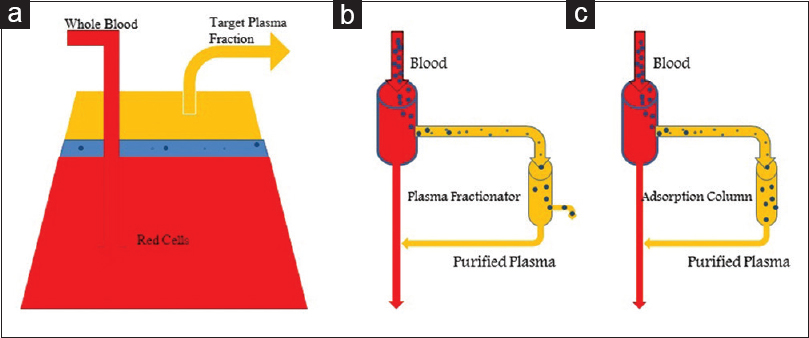 Figure 1: Therapeutic plasma exchange – Modalities. (a) Centrifugal TPE. (b) Double Membrane -Filtration. (c) Immunoadsorption